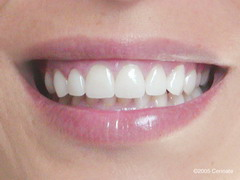 After Family Dentistry
